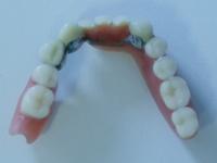 protetika - stomatološka ordinacija Majer